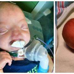 Ce bébé est né sans nez, mais ça ne l'empêche pas d'être vraiment trop mignon