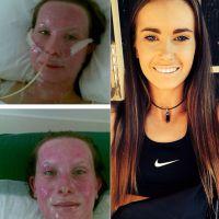 Gravement brûlée au visage, cette fille se bat et devient la plus jolie des coachs