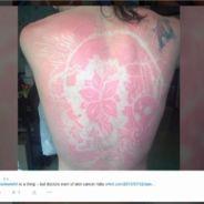 ed251315112af5 Les tatouages éphémères  quot coup de soleil quot    la mode dangereuse ...