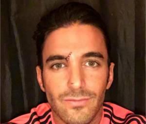 Thomas Vergara dévoile une blessure sanglante sur Instagram le 10 novembre 2015