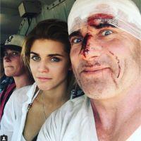Prison Break saison 5 : les blessures de Dominic Purcell intégrées à la série