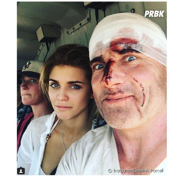 Dominic Purcell (Prison Break) : ses blessures intégrées à la saison 5