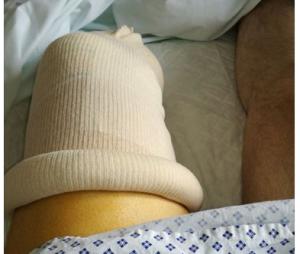 Kaamelott : un fan se fait amputer la jambe, Alexandre Astier prend de ses nouvelles