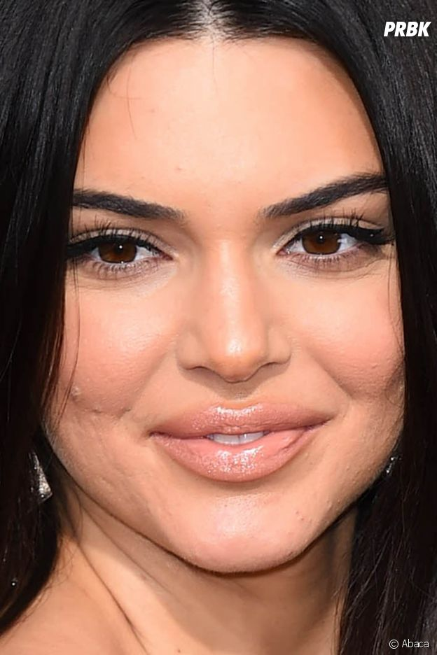 Kendall Jenner clashée sur son acné : elle réagit !