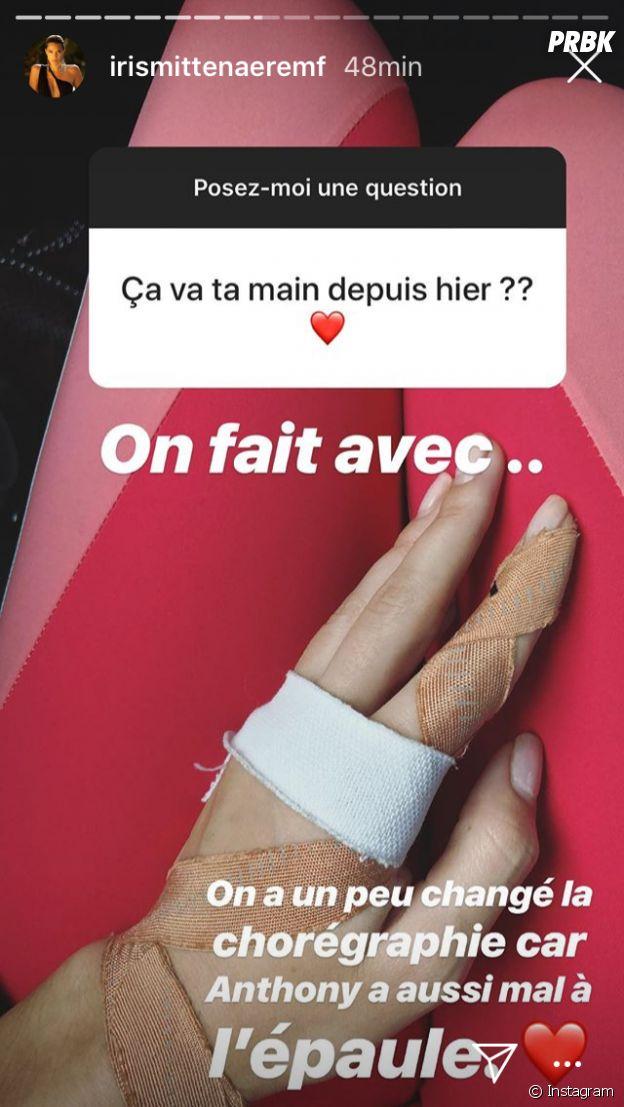 Danse avec les stars 9 : Iris Mittenaere et Anthony Colette blessés, ils dévoilent leurs blessures en photos sur Instagram.