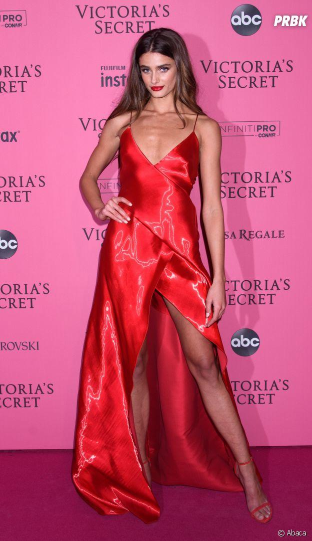Taylor Hill : la top de Victoria's Secret assume ses boutons d'acné sur Instagram.
