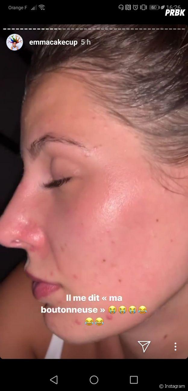 """Emma CakeCup s'affiche sans maquillage : """"ma peau, ça commence à devenir un complexe"""""""