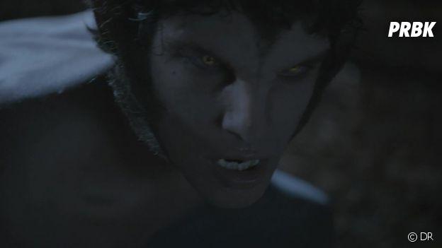 Teen Wolf : le maquillage de Scott ne plaît toujours pas au créateur de la série
