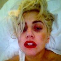 Lady Gaga et la barre de fer : elle affiche son bobo sur Twitter (PHOTO)
