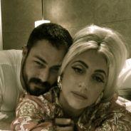 Lady Gaga : la guerre avec Madonna, l'amour avec Taylor Kinney (PHOTO)
