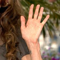 Japon : chirurgie esthétique de la main pour changer les lignes de son destin