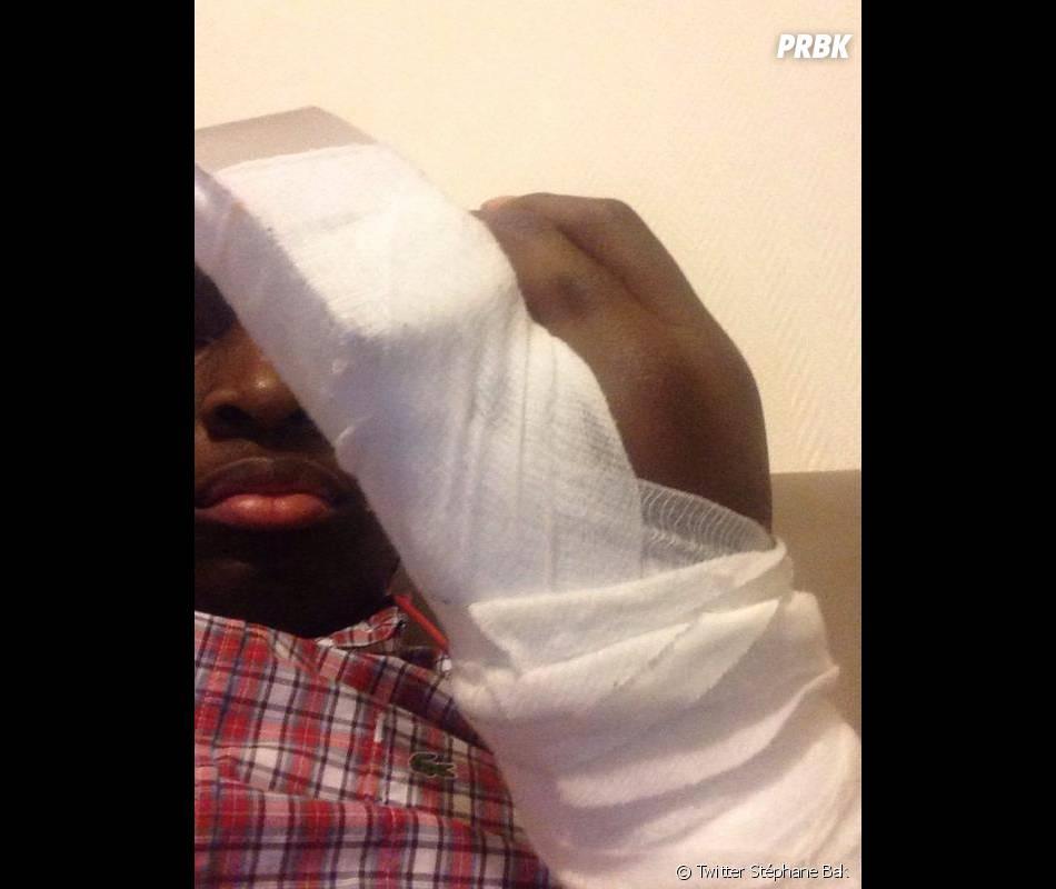 Fort Boyard : blessure à la main pour Stéphane Bak