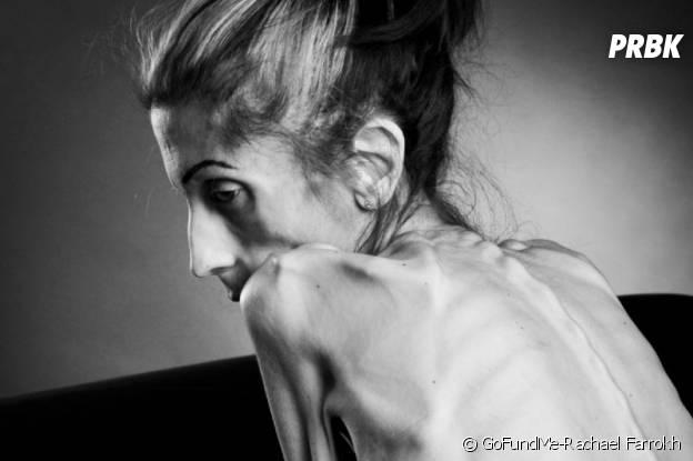 Photo de Rachael Farrokh postée sur la page de son opération GoFundMe.
