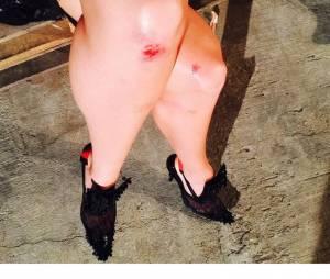 Candice Swanepoel dévoile sur Instagram ses blessures après sa chute durant le défilé Givenchy, le 11 septembre 2015