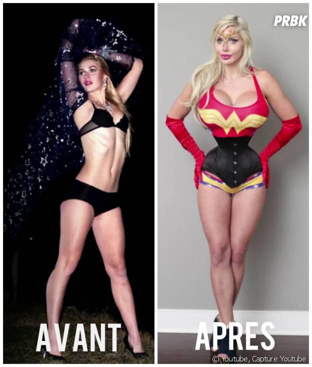 Avant et après opération pour Pixee Fox