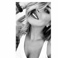 Emilie Fiorelli (Secret Story 9) se confie sur ses opérations de chirurgie esthétique