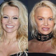 Pamela Anderson défigurée par la chirurgie ? La bombe d'Alerte à Malibu est méconnaissable