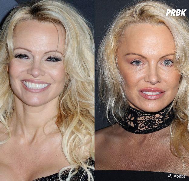 Pamela Anderson avant-après : à gauche il y a quelques semaines seulement et à droite le 7 janvier 2017. A-t-elle fait de la chirurgie à son visage ?