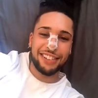 """Eddy """"très content"""" de son nouveau nez : après l'opération, il montre le résultat en vidéo"""