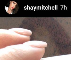Shay Mitchell (Pretty Little Liars) dévoile avoir été victime d'une fausse couche sur Instagram Stories