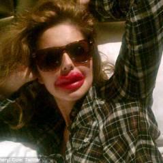 Cheryl Cole et sa nouvelle bouche : très très ''pulpeuse''