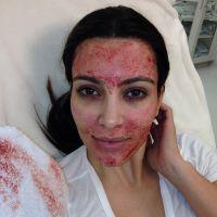 """Kim Kardashian : un """"lifting vampire"""" pour rester jeune et belle"""