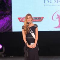 Camille Cerf de retour en France : sublime et engagée contre le cancer