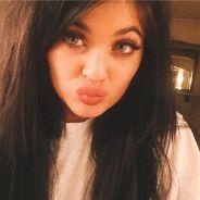"""Kylie Jenner Challenge : le """"jeu"""" flippant pour se gonfler les lèvres"""