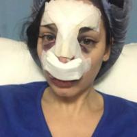Nadège Lacroix couverte de bleus : sa photo choc après son opération de chirurgie du nez !