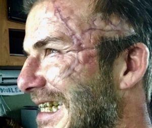 David Beckham défiguré sur le tournage de Le Roi Arthur : La Légende d'Excalibur