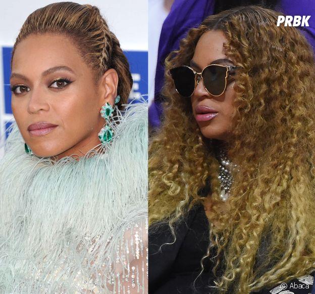 Beyoncé : ses lèvres ont gonflées, aurait-elle fait de la chirurgie esthétique ? Elle réagit à la rumeur !