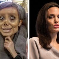 Angelina Jolie : une fan réalise 50 opérations pour lui ressembler et le résultat fait peur 😮