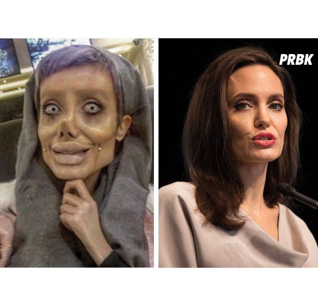 Angeline Jolie : une fan réalise 50 opérations de chirurgie pour lui ressembler