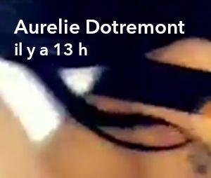 Aurélie Dotremont dévoile les premiers résultats de sa chirurgie esthétique