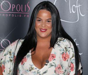 Sarah Fraisou a perdu 5 kilos en 6 jours : a-t-elle subi une opération de chirurgie esthétique pour cette perte de poids ?