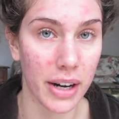 """Cassandra Bankson : """"Etre mannequin avec de l'acné, c'est possible !"""" (VIDEOS)"""