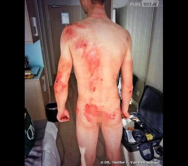 Tour de France 2013 : Tony Martin dévoile ses blessures