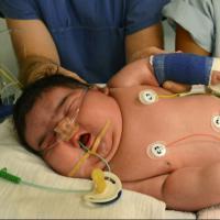 Et le bébé le plus gros d'Allemagne pèse...