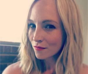 The Vampire Diaries : Candice Accola pas énervée après que son compte Twitter ait été hacké