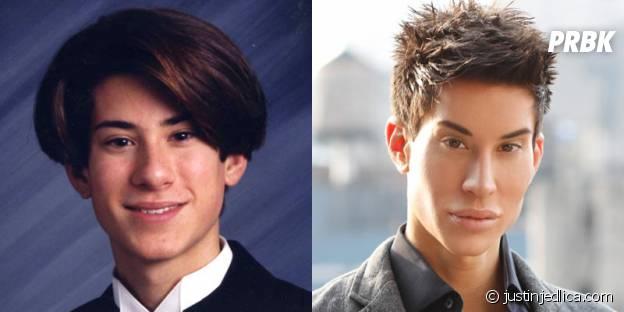 Justin Jedlica avant et après toutes ses opérations esthétiques.