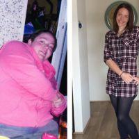 Cette australienne a perdu presque 100 kilos en 4 ans : les séquelles sur son corps sont choquantes