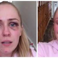Une blogueuse se filme pour dénoncer les violences de son mari et bouleverse Facebook