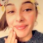 Coralie Porrovecchio : non ce n'est pas de la chirurgie esthétique, ses lèvres ont gonflé à cause de la micropigmentation.