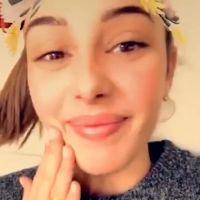 Coralie Porrovecchio : ses lèvres gonflent en direct sur Snapchat