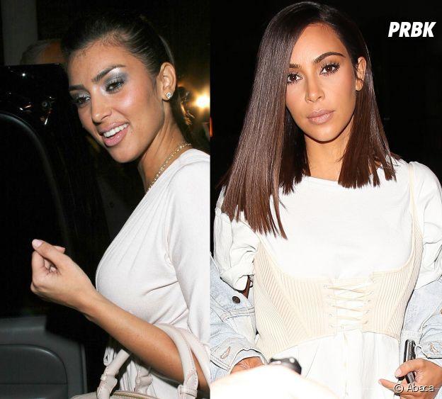 Kim Kardashian avant-après la chirurgie esthétique !