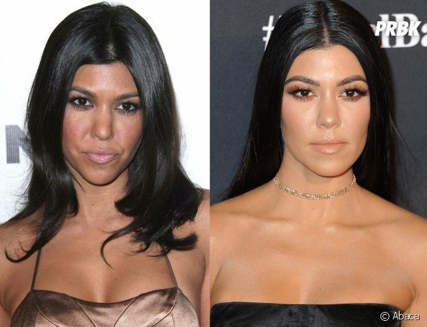 Kourtney Kardashian avant-après la chirurgie esthétique !