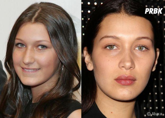 Bella Hadid avant-après : transformée, la soeur de Gigi Hadid est accusée d'avoir eu recours à la chirurgie esthétique.