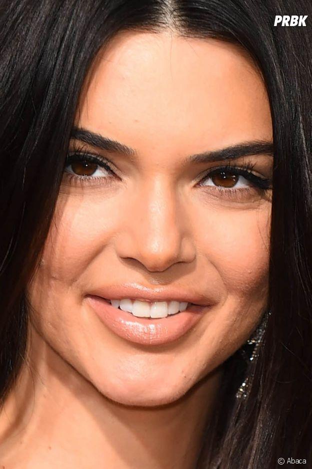 Kendall Jenner a-t-elle eu recours à la chirurgie esthétique ? Ses lèvres ont grossi, les internautes la clashent !