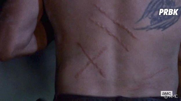 The Walking Dead saison 9 : l'origine de la cicatrice de Daryl dévoilée