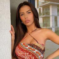 Dita Istrefi (Les Princes) agressée et défigurée : elle se montre après l'opération au visage